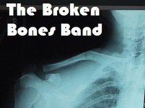 Broken Bones Band