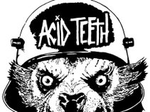Acid Teeth