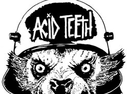 Image for Acid Teeth