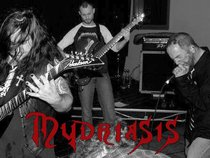 Mydriasis