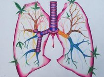 Pulmonary Implosion