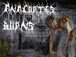 Image for Anacortes Burns